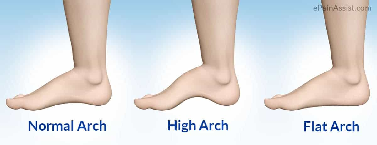 What foot arch type are you?